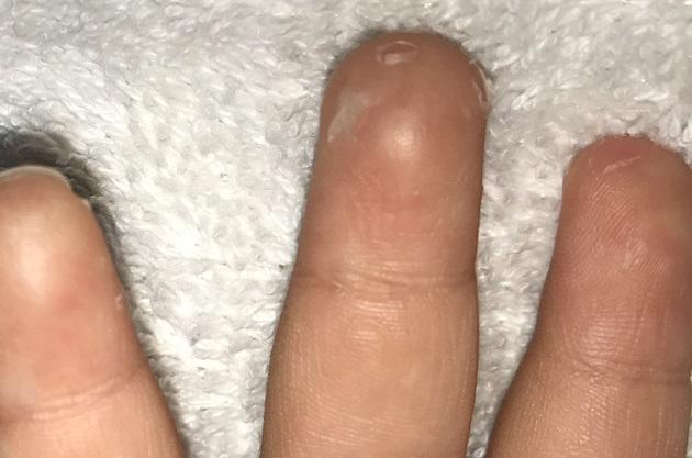 手足 口 病 発疹 消える まで